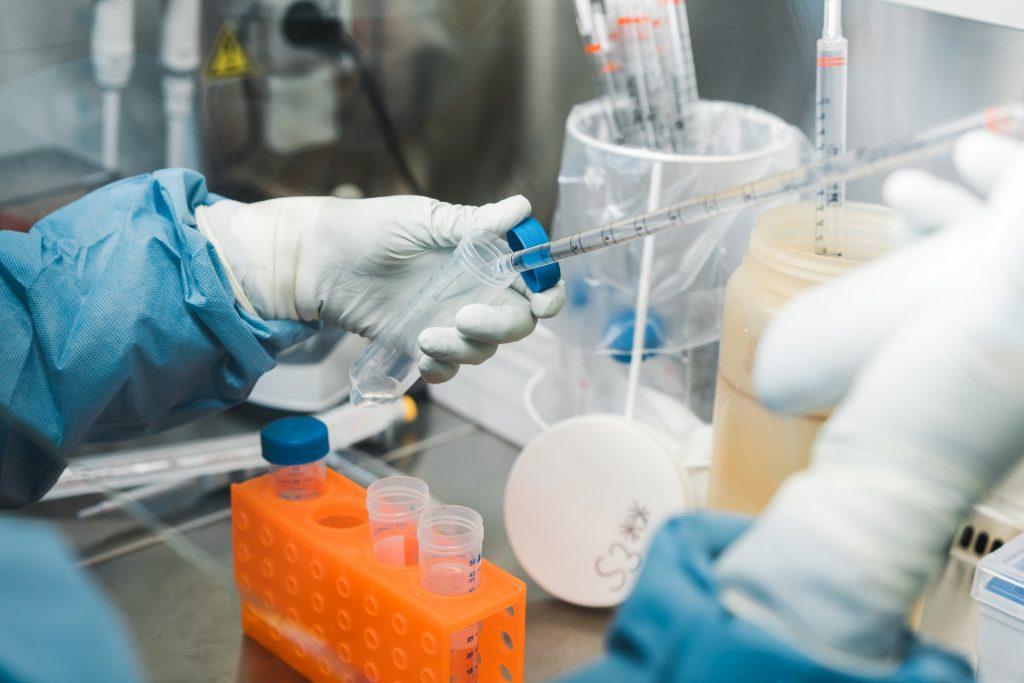 HIV-Forscherin Nahaufnahme der Hände in Handschuhen| 40Stunden